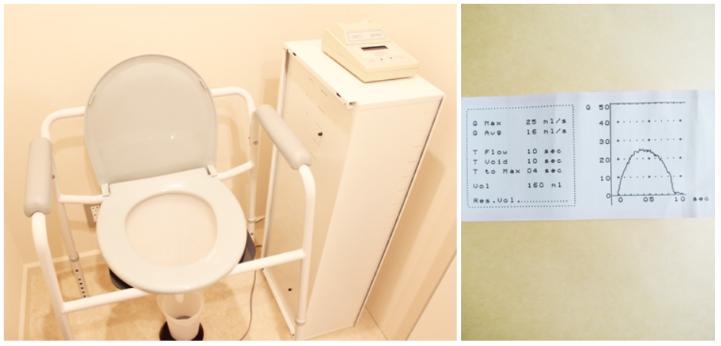 尿流量測定